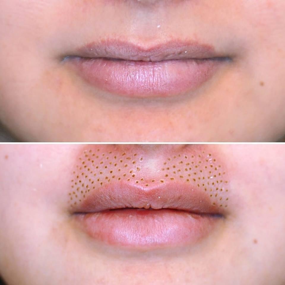 Volume des lèvres